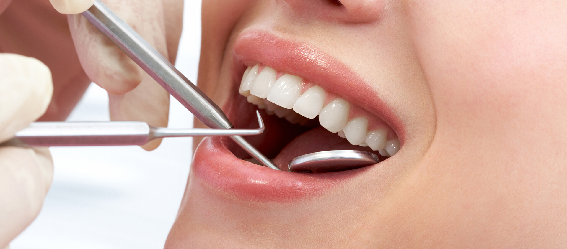 Find a Dentist for Professional Teeth Cleaning in Brandon, FL Area