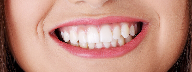 Dentist for Teeth Cleaning at Williams Family & Cosmetic Dentistry in Brandon, FL Area