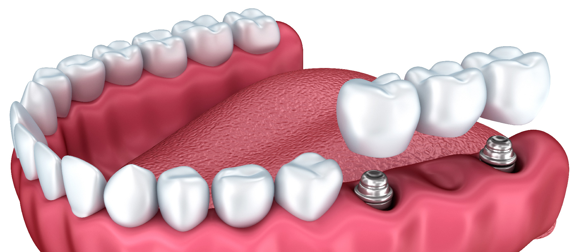 What are the porcelain dental crowns and now can I get treatments near Brandon, Florida